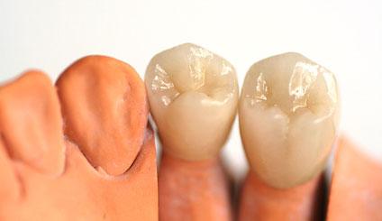 Zahnersatzi n der Zahnarztpraxis DentalOase